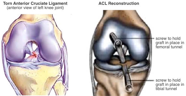 knee acl reconstruction surgery, Muscles
