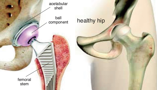 Hip - Orthopaedic Associates of Muskegon