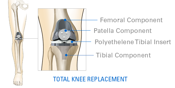 total-knee-replacement