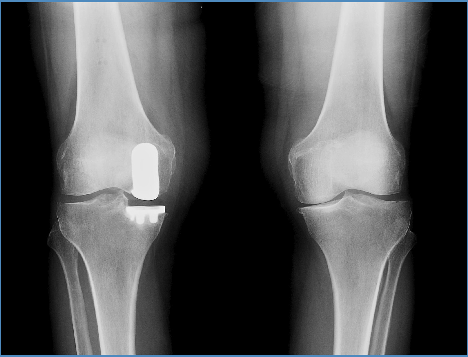 partial-knee-after