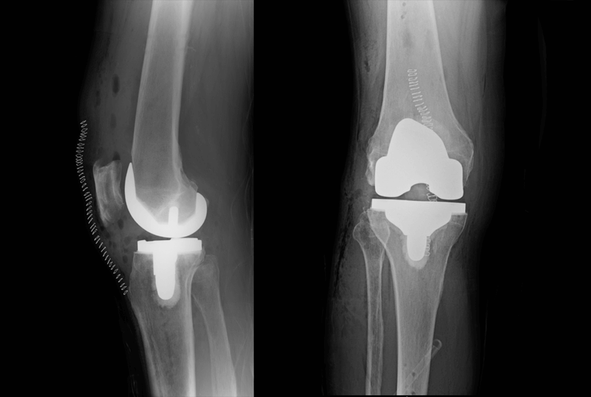 total-knee-after